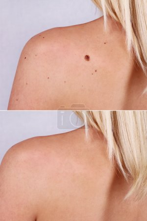 Laser treatment for birthmark removal before and after.