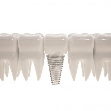 3d teeth with pin