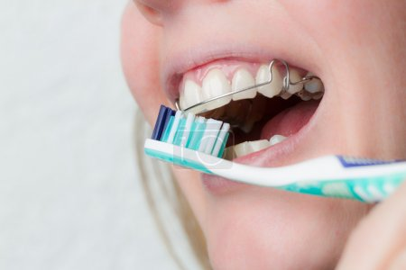 Cleaning teeth with a dental brace