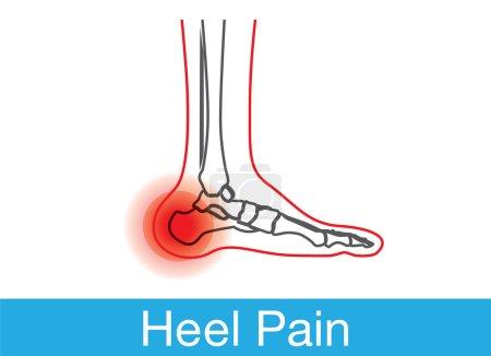 Heel pain outline