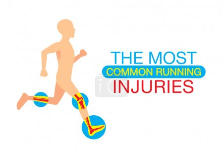 Illustration for Human body part common injuries form running. This illustration about heath and sport. - Royalty Free Image