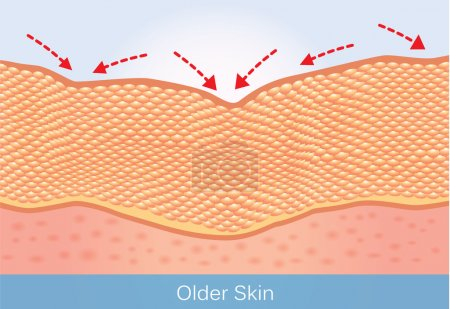 Illustration for Wrinkles and sagging skin of elderly. This illustration about beauty and health care. - Royalty Free Image
