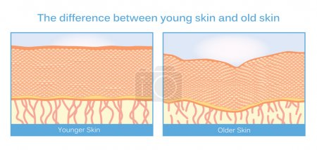 Illustration for The difference between young skin and old skin. This illustration about skincare - Royalty Free Image
