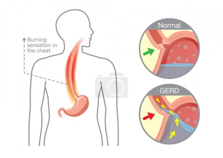 Cause of gastroesophageal reflux disease in human stomach