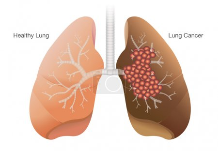 Illustration for Comparison between healthy lung and cancer lung isolated on white background. - Royalty Free Image