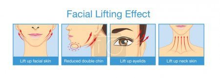 Lifting effect on facial of women