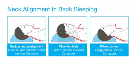 Illustration for Right alignment of neck, head, and shoulder in sleep with back sleeping posture. This is healthy lifestyle illustration. - Royalty Free Image