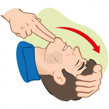 Illustration for First Aid resuscitation (CPR), clearing breathing, positioning. For resuscitation. Ideal for training materials, catalogs and institutional - Royalty Free Image