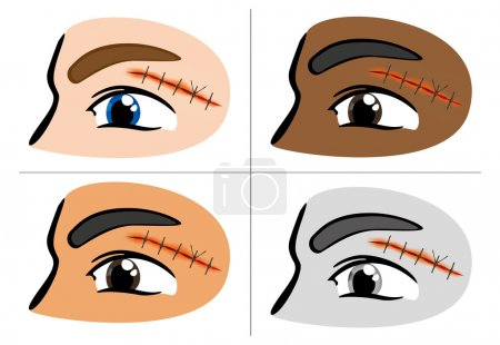 Illustration of a receiving first aid, injury or cut and sutured face. Ideal for catalogs, information and first aid guides