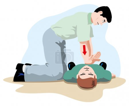 Illustration for First Aid resuscitation (CPR), massage compression of the rib cage chest resuscitation. Ideal for training materials, catalogs and institutional - Royalty Free Image
