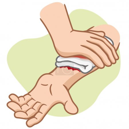 Illustration of an arm receiving first aid, injury compression arm. Ideal for medical supplies, educational and institutional