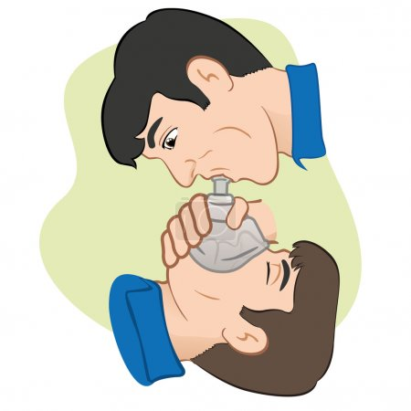 Illustration of a person with respiratory arrest being revived with the help of a pocket mask to help with breathing. Ideal for Medical Supplies, institutional and educational