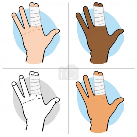 Illustration of a human hand with fingers bunched with bandages, ethnic. Ideal for catalogs, information and first aid guides