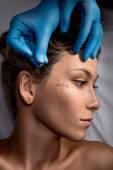 face lifting surgery.