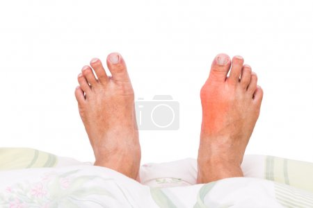 Right foot with painful swollen gout inflammation resting on bed