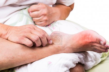 Man on bed embrace foot with painful swollen gout inflammation