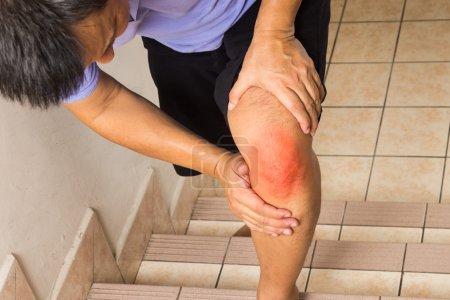 Matured man suffering acute knee joint pain climbing steps