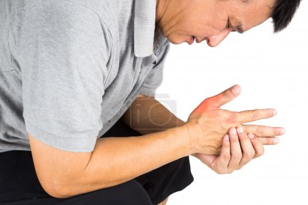 Man with painful and inflamed gout on his hand aro...