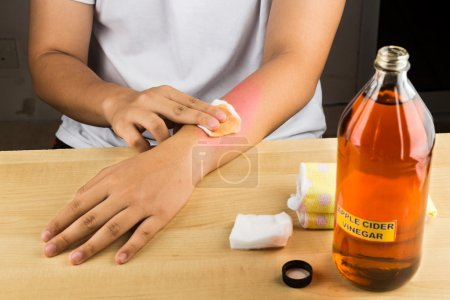 Apple cider vinegar effective natural remedy for skin itch, fung