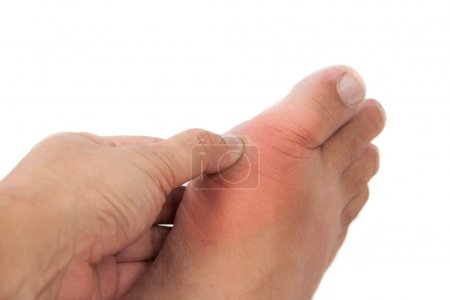 Painful gout inflammation on big toe joint...