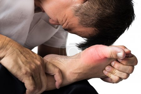 Man with painful and inflamed gout on his foot aro...
