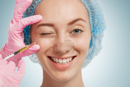 Reduction of wrinkles, injection, nasal labial folds. Portrait of a white woman during surgery filling facial wrinkles. Cosmetic is injected into facial skin cosmetics