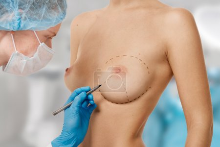 Drawing lines on a Caucasian woman's abdomen as marks for abdominal cellulite cosmetic correction surgery. Operation in the background
