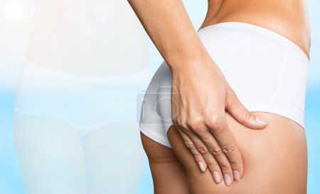 Woman with checking cellulite on her buttocks