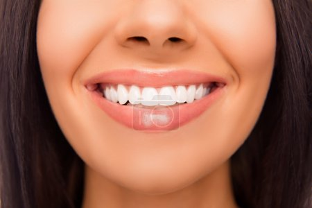 Close up photo of beaming woman's smile and healthy teeth