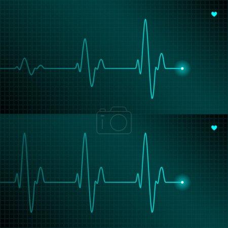 ECG tracing. Vector....