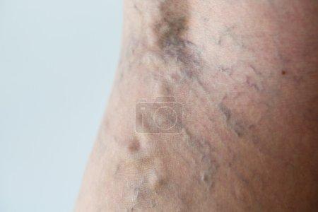 Varicose veins close-up