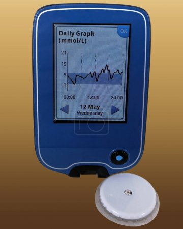 Photo pour Dispositif à gros plan pour la surveillance continue du glucose CGM et capteur blanc. Isolé sur fond jaune-brun. Graphique quotidien à l'écran. Diabète de type 1. L'insuline dépend. - image libre de droit