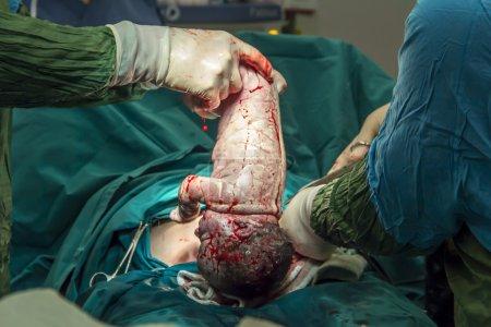 Photo pour Accouchement en salle d'opération chirurgie par césarienne - image libre de droit
