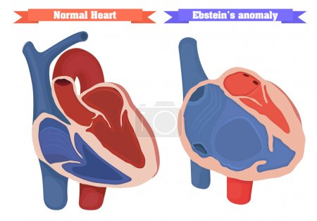 Right ventricle dysfunction, atrial enlagment. Nor...