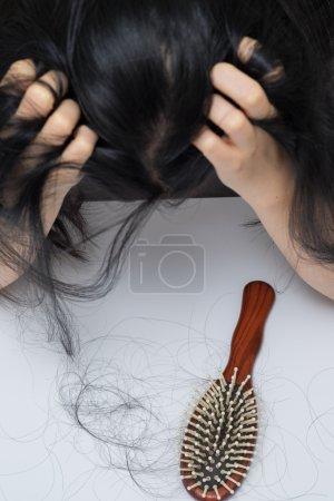 woman hair loss problem