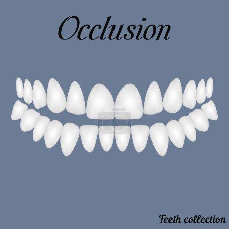 closure of teeth