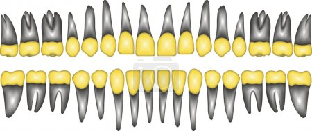 3D gold crown tooth