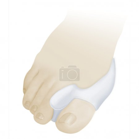 Removable shoes devices. Foot Care Products