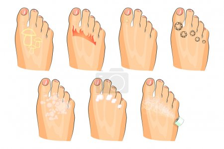 Illustration of the various injuries of the feet. ...