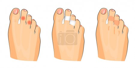 illustration of corns on the toes