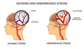 ISCHEMIC AND HEMORRHAGIC STROKE