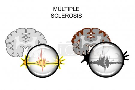 multiple sclerosis of the brain