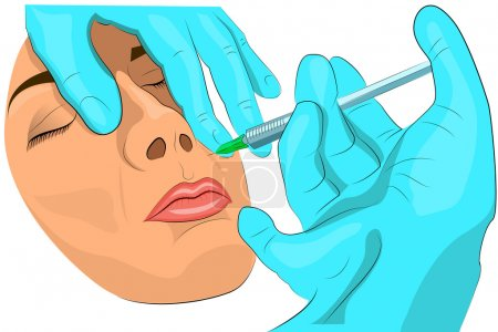 Illustration for Illustration of subcutaneous injections to restore youth and beauty face - Royalty Free Image