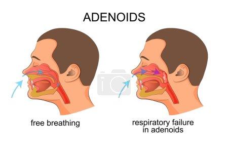 adenoiditis, respiratory failure