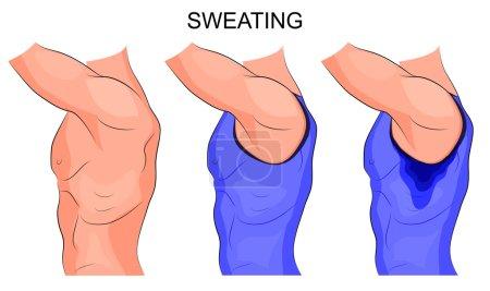 sweaty armpits. hyperhidrosis