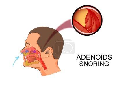 adenoids cause snoring