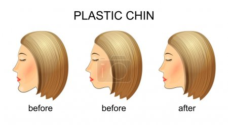 Illustration for Illustration of plastic surgery of the chin. mastoplastica before and after - Royalty Free Image