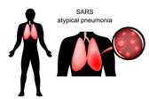 SARS inflamed lungs and the causative agent