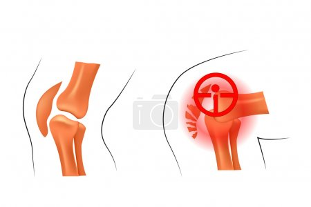 knee, dislocation, fracture. traumatology and orthopedics