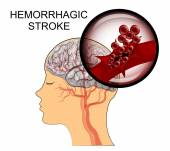 hemorrhagic  stroke brain